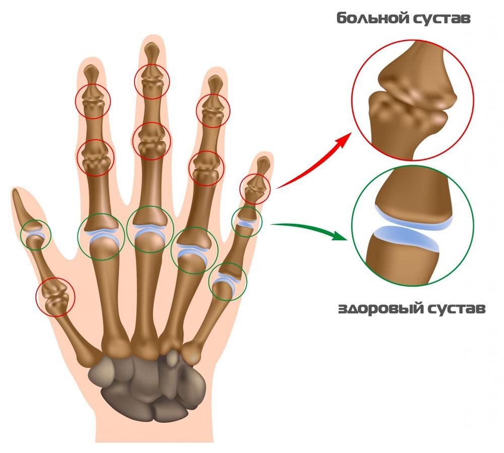 как выглядит сустав при артрите