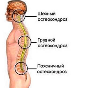 Лечение остеохондроза и грыж шейного отдела | Лечение позвоночника ...